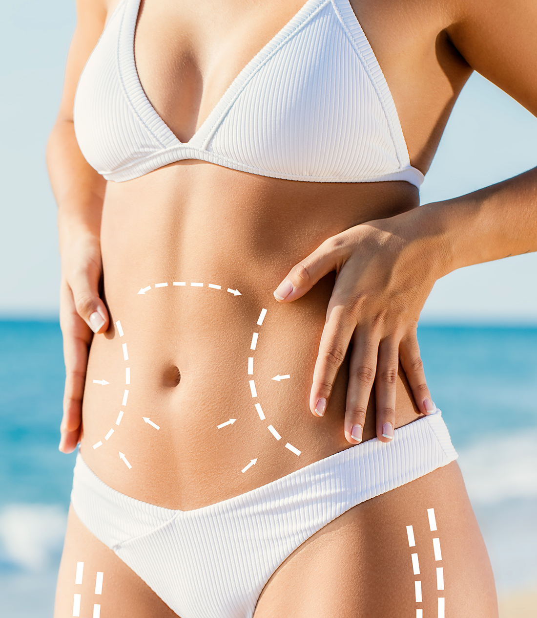 , 8 Things You Need To Know About Tummy Tucks, Saubio Making Wealth