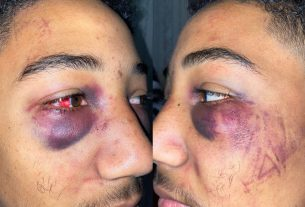 , Stockton Cops Charged With Assault After Leaving Boot-Print on Black Teen's Face, Saubio Making Wealth